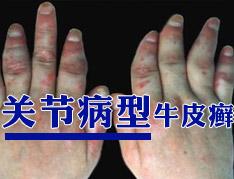 关节病型银屑病治疗