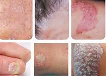 老年脓疱型银屑病诊断
