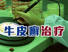 中医治疗牛皮癣的优势